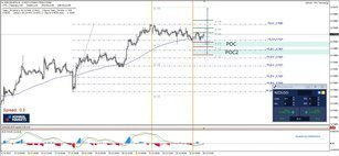 NZD/USD 2 POC Zones For Possible Rejections